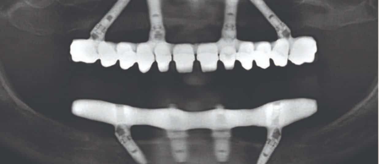 Clinica de Implantes all on four