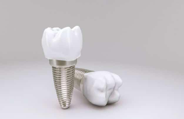 Tus implantes dentales en Barrio de Salamanca
