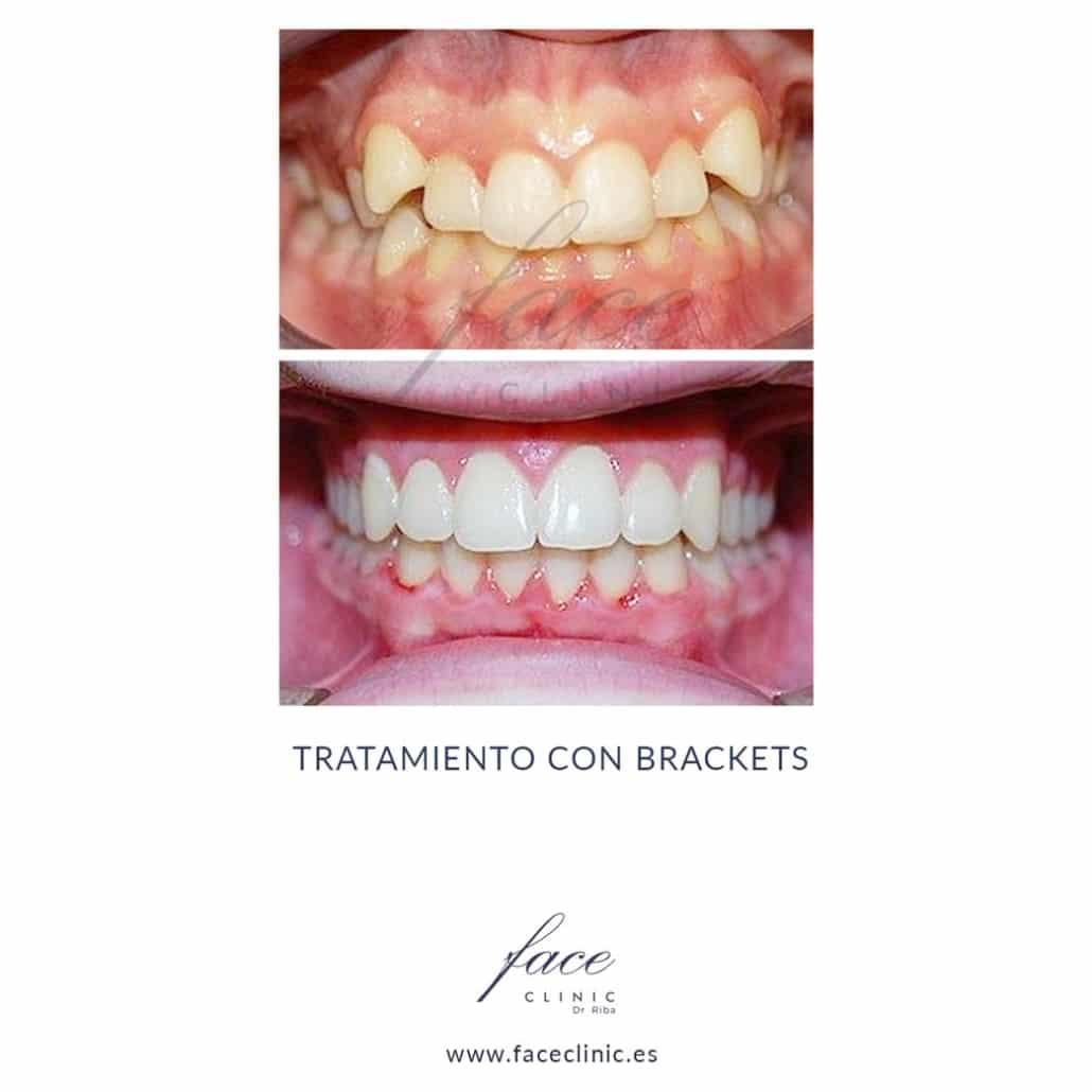 Caso de Ortodoncia en Madrid - Dra. Moya - Caso 7