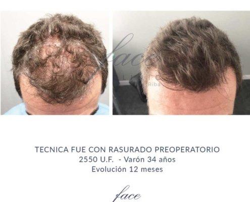 Clinica para tratamiento capilar en Madrid