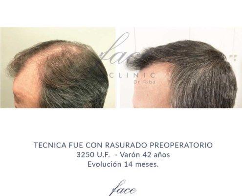 Clinica tratamiento capilar Madrid