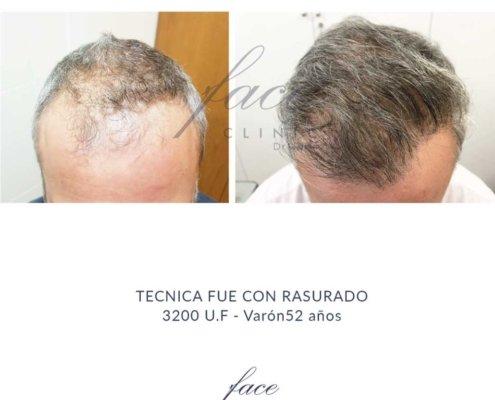 Mejor Clinica para un tratamiento capilar de Madrid