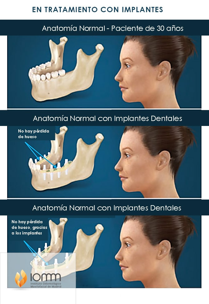 Clinicas de implantes dentales