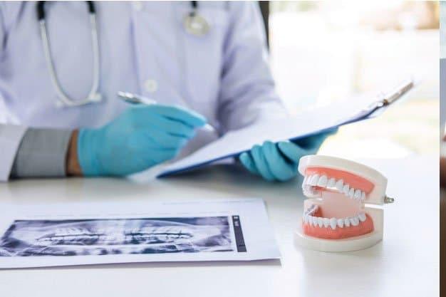 ¿Hay complicaciones graves con implantes dentales?