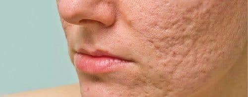 Como quitar las cicatrices de acné