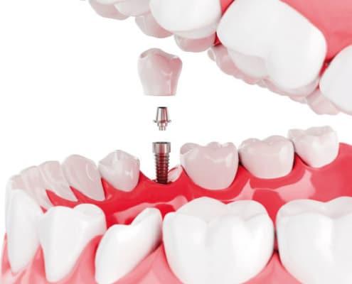 ¿Cómo se coloca un implante dental?