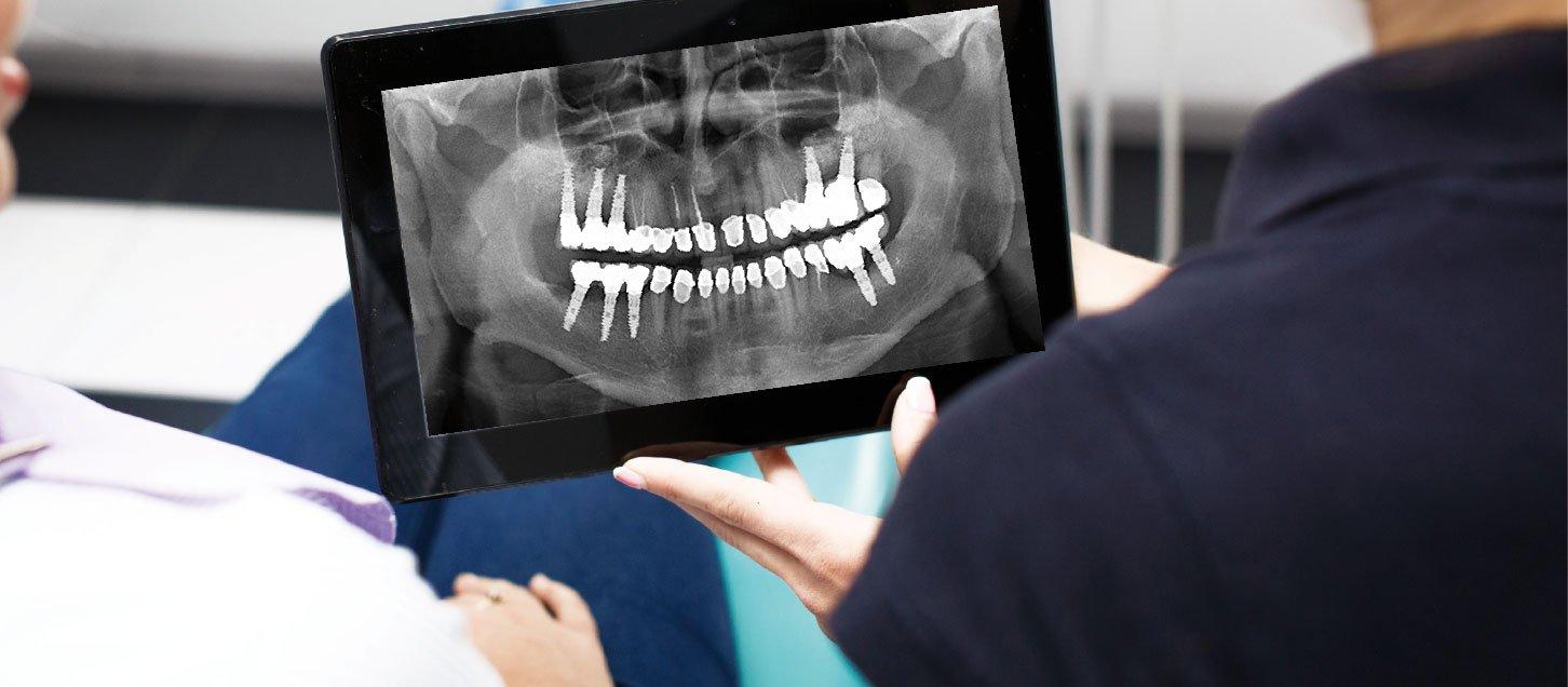 Complicaciones de los implantes dentales y su tratamiento