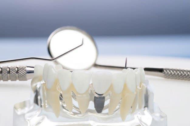consejos importantes antes de colocarte un implante