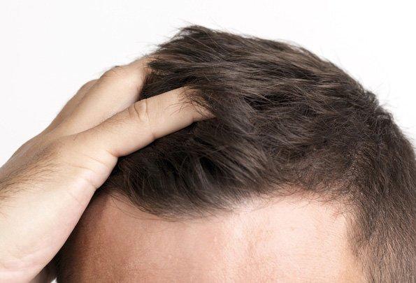 Los mejores consejos y recomendaciones tras un implante de pelo