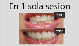 Resultados contorneado dental