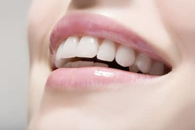 Cosmetic dentistry Madrid, Spain