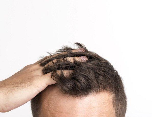 ¿Cuánto tiempo tarda en crecer el pelo después de un injerto capilar??