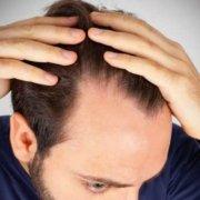 ¿Cuándo empieza a crecer el pelo implantado?