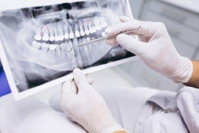 deformidades dentofaciales tratamiento