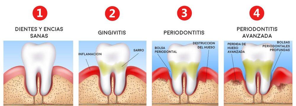 Dentistas especializados en periodontitis en Madrid