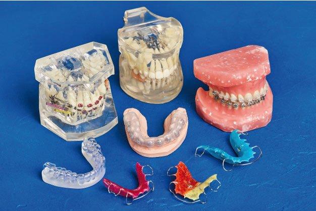 Dentistas especialistas en Ortodoncia en Huelva