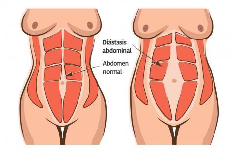 Diástasis abdominal en hombres y mujeres