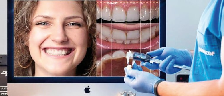 Diseño de la sonrisa en odontologia