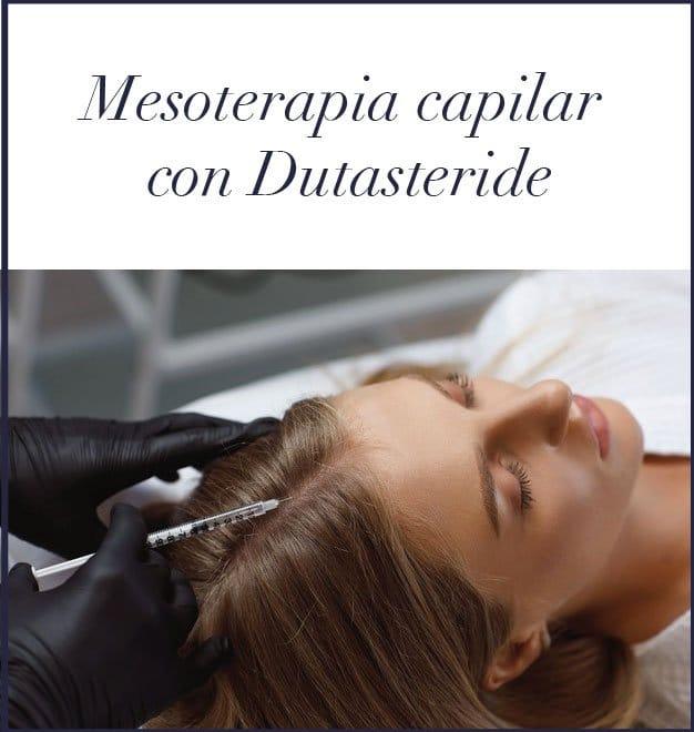 Dutasteride alopecia Madrid