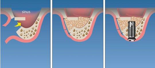 Elevacion de seno maxilar en Madrid