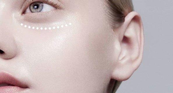 Elimina las ojeras de forma definitiva en nuestras clínicas de Madrid
