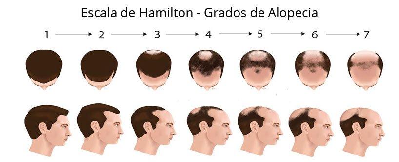 La escala de Hamilton
