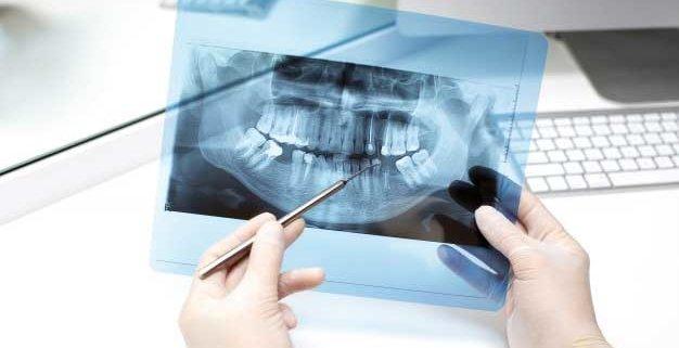 Estudio implantológico