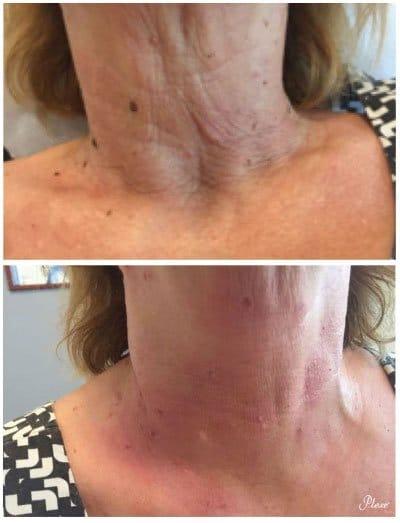 Eliminar la flacidez en el cuello con Plexer