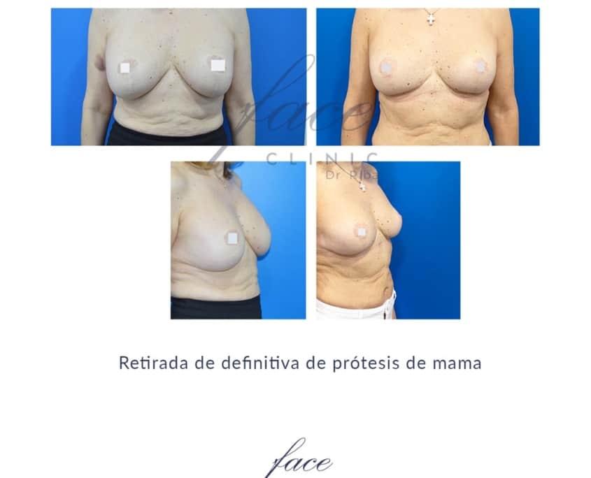 Fotos de retirada de protesis mama