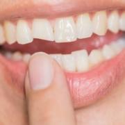 Una fractura dental