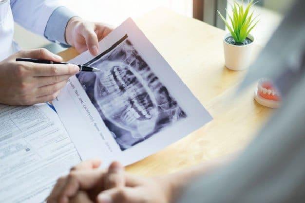 Frecuencia de problemas con Implantes dentales