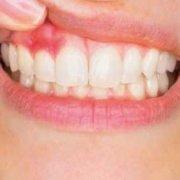 Gingivitis aguda: síntomas y cura