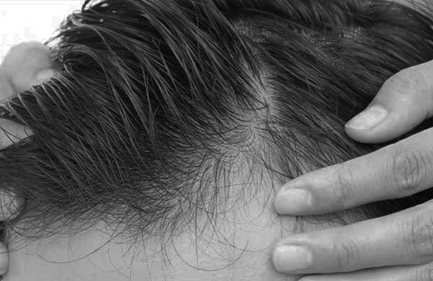 Implante capilar en hombres en Badajoz, Extremadura