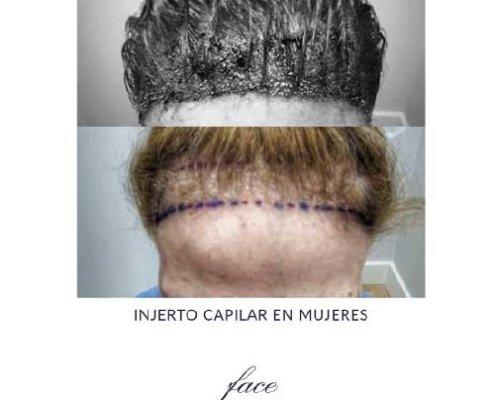 El implante capilar en mujeres