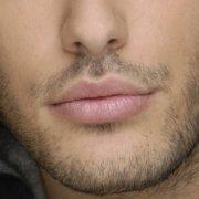 Implante de barba, bigote y patillas en Face Clinic