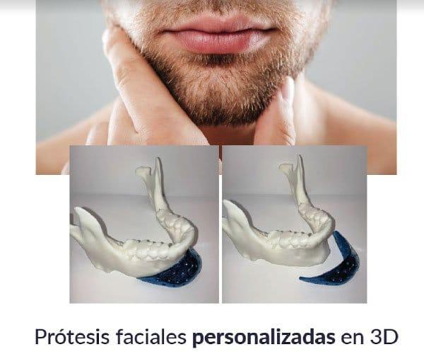 Implante de menton en Madrid, España