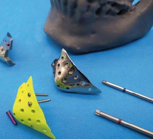Implante de mentón y mandíbula en Madrid