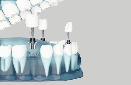 Implante dental versus puente