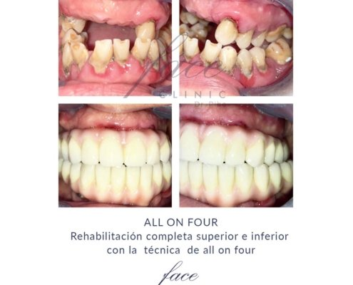 Opiniones implantes all on four