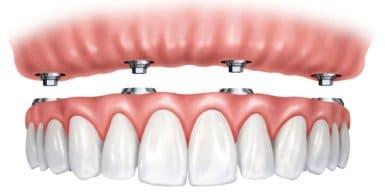 Los implantes carga inmediata