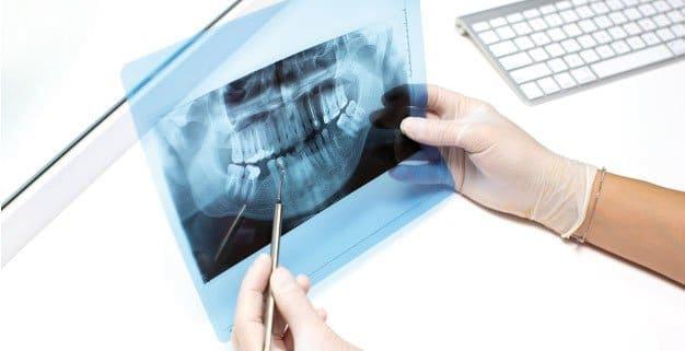 Tus implantes cuando no hay hueso