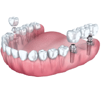 Carga Inmediata O Implantes En 1 Día