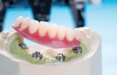 Implantes dentales en Rios Rosas