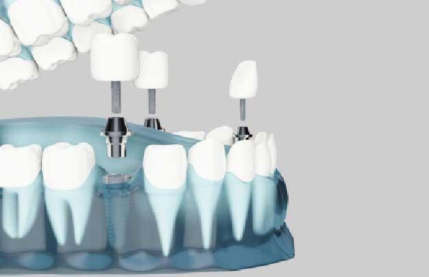 implantes dentales en un dia para toda la boca Precio