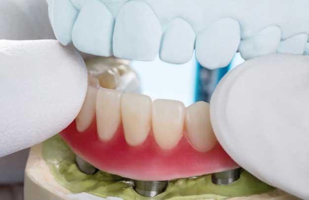 implantes dentales en un dia para toda la boca Madrid