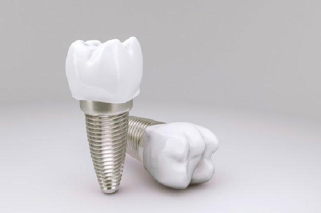 Tus implantes dentales inmediatos