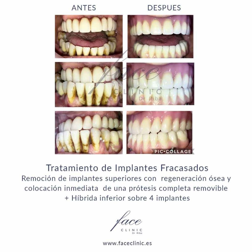 Implantes dentales problemas Madrid