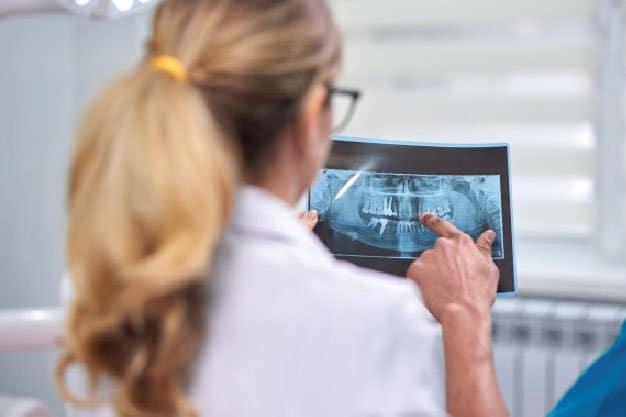 Implantes dentales problemas importantes solución