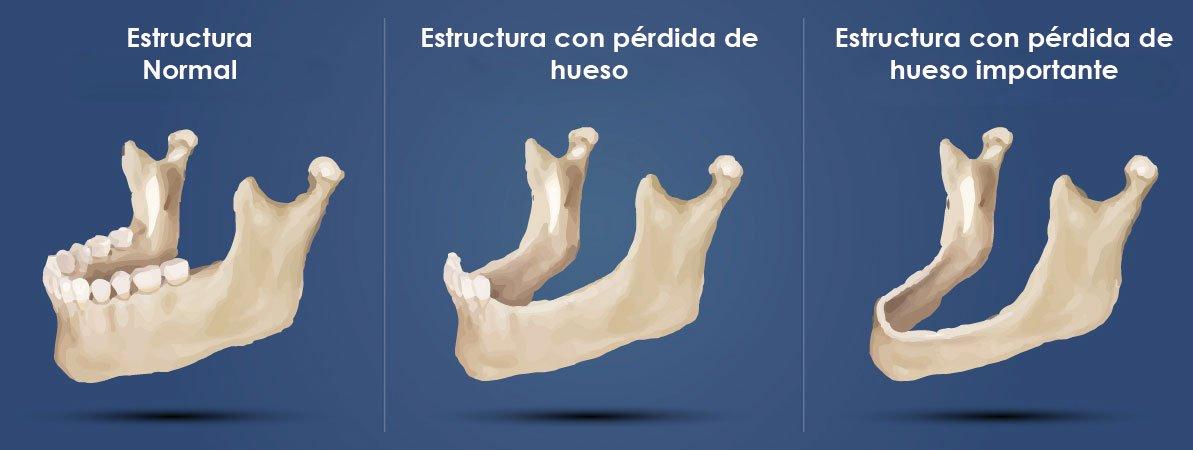 Sobre los implantes dentales sin hueso en Madrid