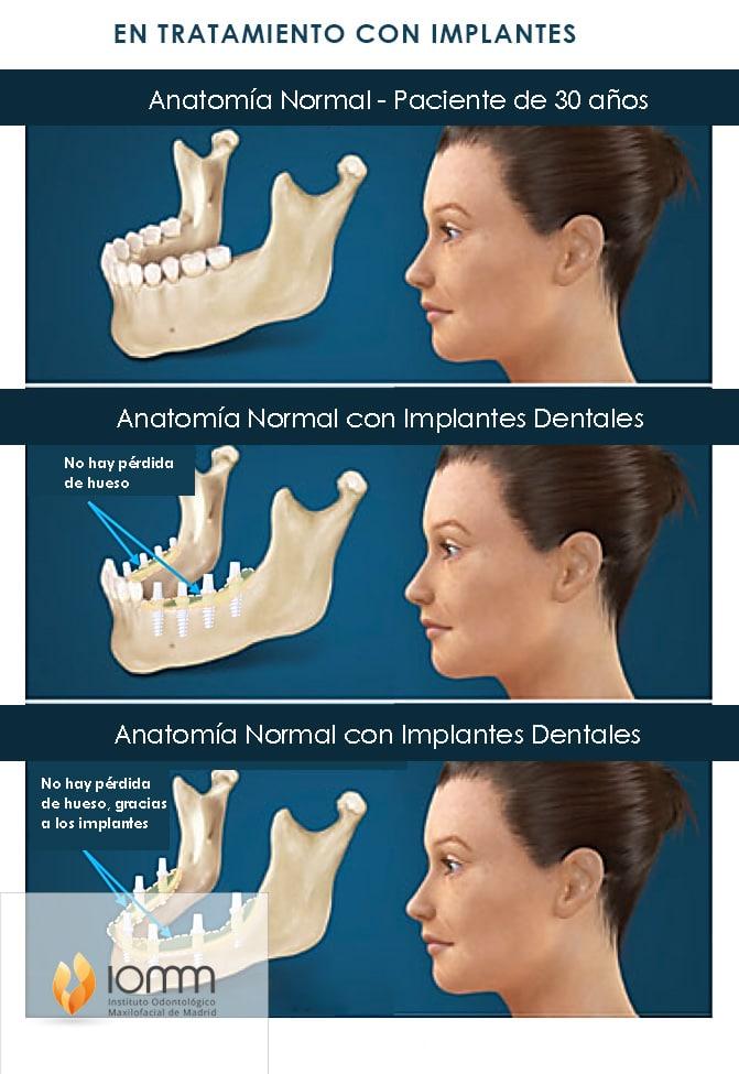 Tratamiento en Madrid de implantes dentales sin hueso